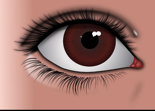आँखों में जलन के उपाय - Eye irritation home remedies hindi
