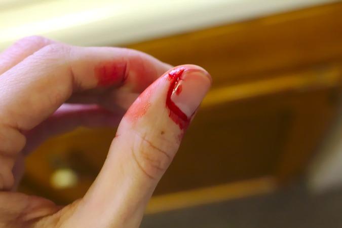 Image result for शरीर से बहता रक्त रोके
