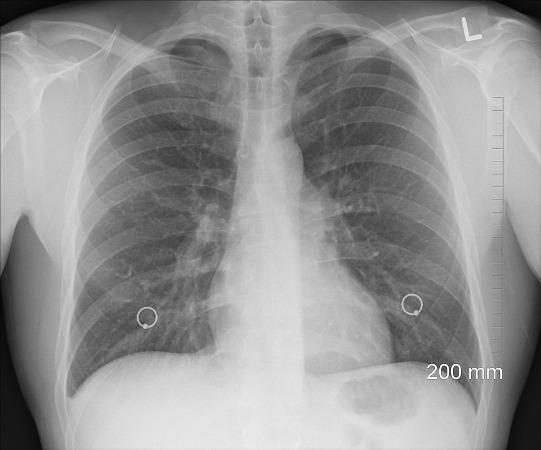 Image result for सांस के रोग