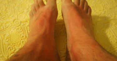 स्किन कैंसर के लक्षण और बचाव के उपाय - Skin cancer symptoms hindi