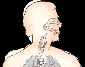 लेरिन्जाइटिस क्या है, इसके लक्षण और उपचार