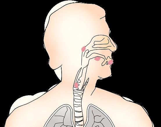 what is laryngitis, its symptoms and home remedies in hindi, लेरिन्जाइटिस क्या है, इसके लक्षण और उपचार जैसे कि क्या खाएं और क्या ना खाएं.