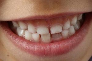 दांतों को खराब करने वाली आदतें