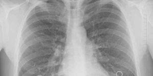 प्लूरिसी रोग के लक्षण और उपचार