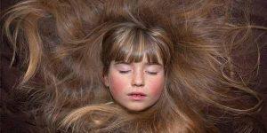 बाल झड़ने के 8 कारण