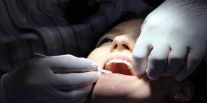 दांतों में सेंसिटिविटी होने के कारण