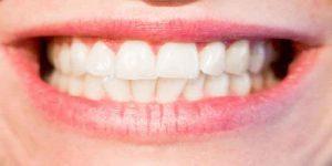 डायस्टेमा ( दांतों के बीच गैप ) क्या है – कारण और उपचार
