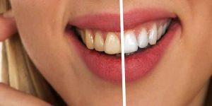 दांत को सफेद और चमकाने वाले फल