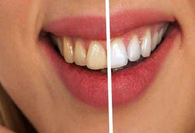 दांतों पर नमक और सरसो का तेल लगाने के फायदे