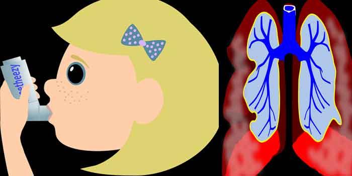 महिलाओं में अस्थमा की जांच रखें