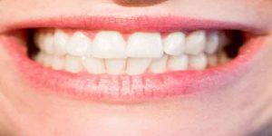 दांत मजबूत करने के उपाय