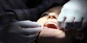 दांतों की 5 बीमारियां और समाधान