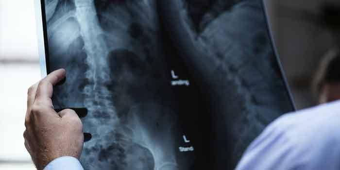 रीढ़ की हड्डी में चोट के लक्षण