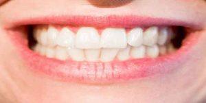 दांतों में ठंडा गरम लगने के घरेलू उपचार