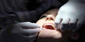 दांत उखाड़ने के बाद क्या करना चाहिए