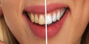 सफेद दांत पाने के उपाय – खाएं ये 5 फल