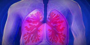 टीबी का घरेलू उपचार