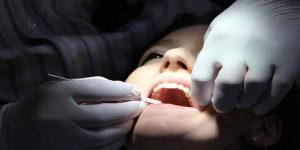 दांतों में झुनझुनी के कारण और घरेलू उपचार