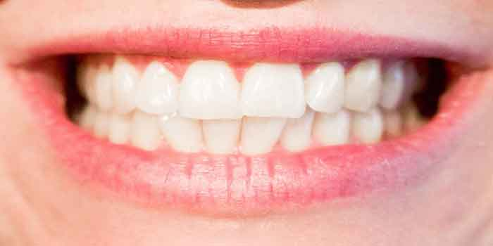 दांतों में संक्रमण के उपचार