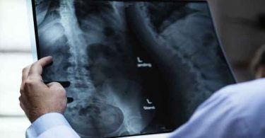 हड्डियों की कमजोरी का इलाज