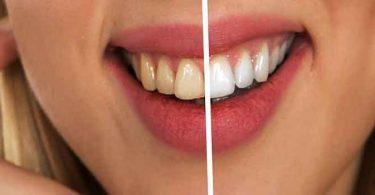 सरसों के तेल से 2 मिनट में दूर करें दांतों का पीलापन