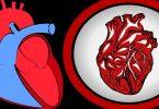 कोरोनरी धमनी क्या है और धमनियों के ब्लॉकेज के लक्षण