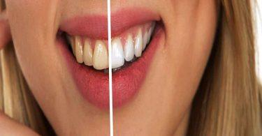 इन कारणों की वजह से होते हैं दांत पीले