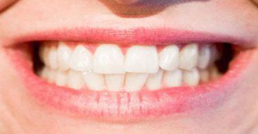 दांत को सफेद करने के लिए नारियल तेल